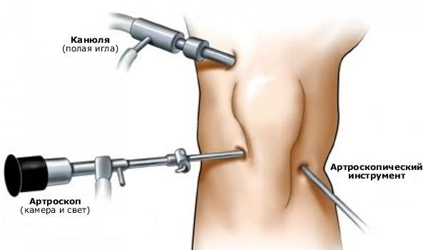 Артроскопия при кисте Бейкера