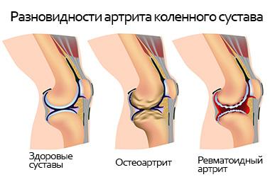 Ревматоидный артрит колена - причины, симптомы, лечение.
