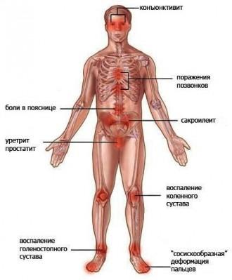 Симптомы реактивного артрита коленного сустава