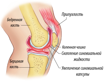 sinovit-kolennogo-sustava-lechenie