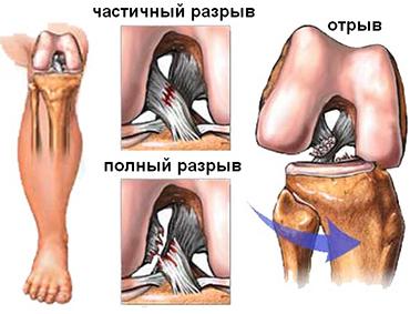 Надрыв мениска коленного сустава лечение