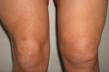 Реактивный синовит коленного сустава фото
