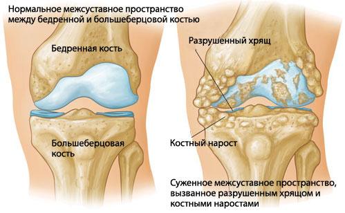 Полиартрит коленного сустава: симптомы, диагностика, лечение